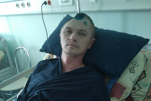 Россиянину отбили полголовы на экзамене по приёму в ОМОН